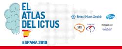 Atlas-ictus